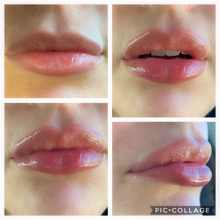 Anti-Aging Lip Plumper Before and After
